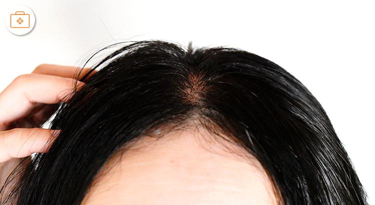 円形脱毛症におすすめのレシピ